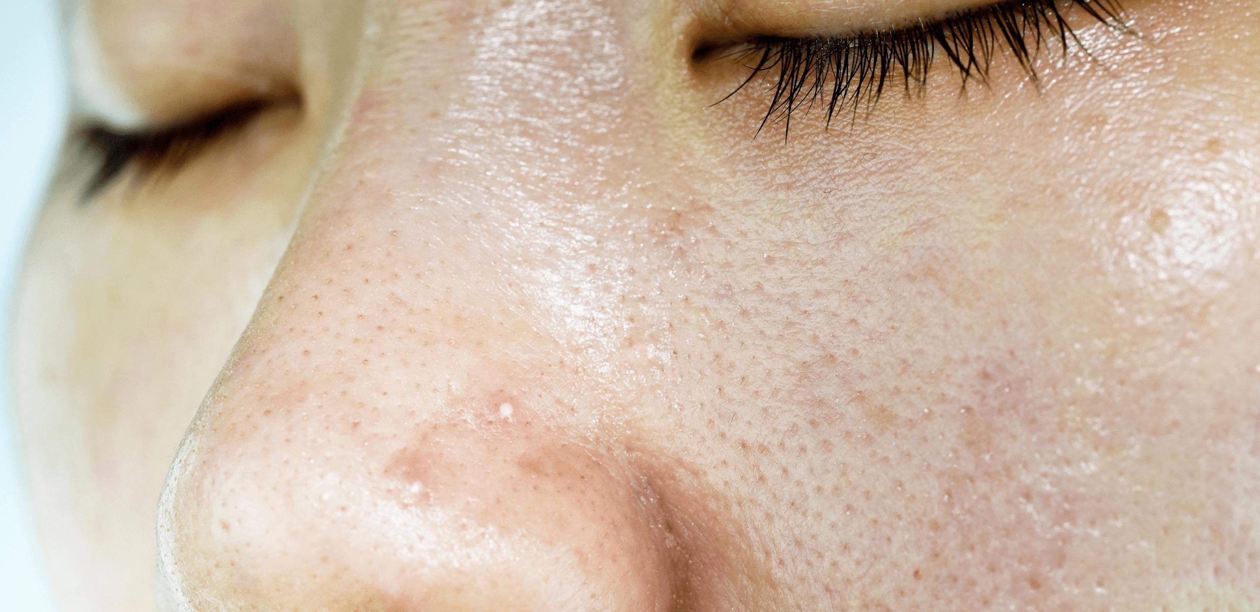 【ニキビができやすい体質】皮脂の分泌量が多い