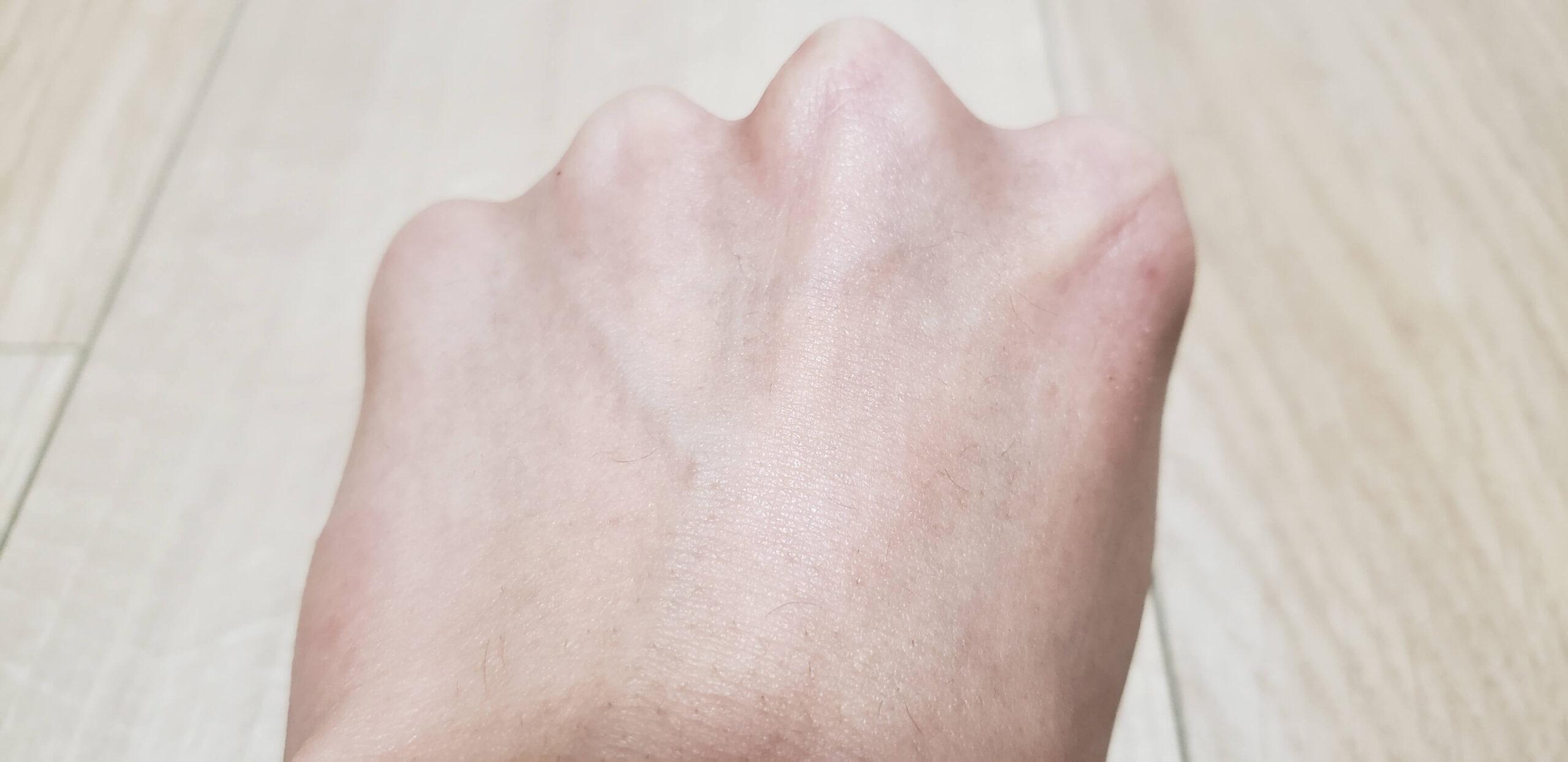 メラノCC化粧水の使用前