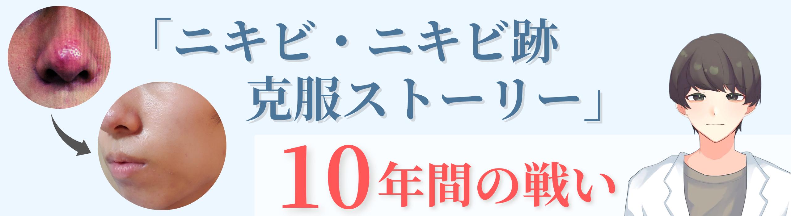 ニキビ・ニキビ跡歴10年のストーリー